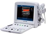 Ультразвуковой сканер EDAN U50