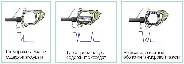 show websites with info on basic ekg interpretation